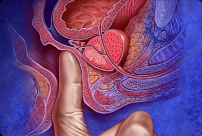 Обострение боли при лечении простатита