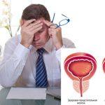 Недорогие таблетки от простатита для мужчин