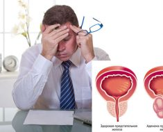 Простатит – распространенное заболевание