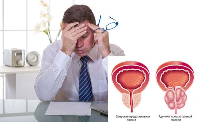 Лучшее лекарство от простатита Архив мужского форума