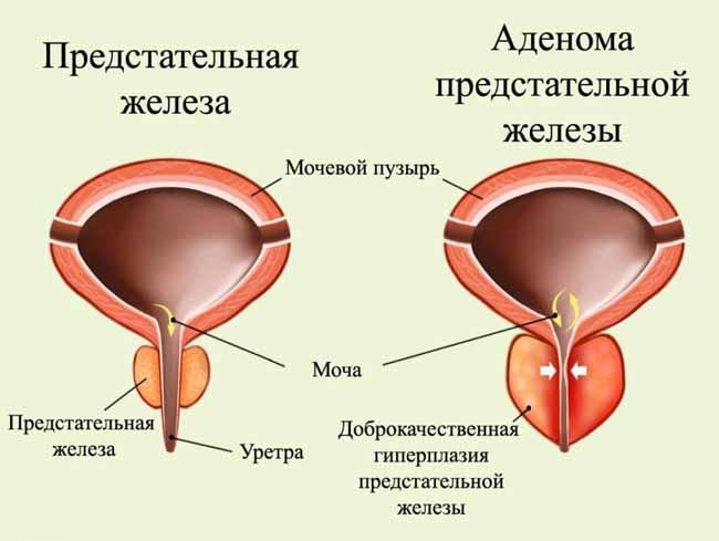 Код аденомы по МКБ