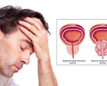 как лечить аденому простаты у мужчин