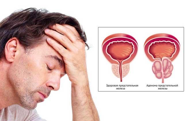 Как лечить простатит и аденому простаты