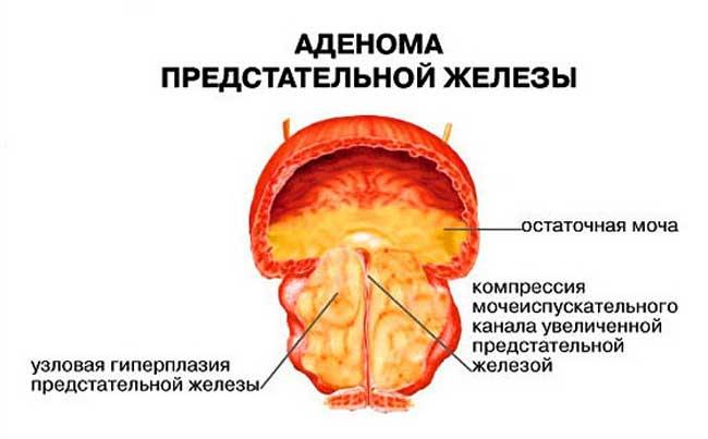 аденома предстаты