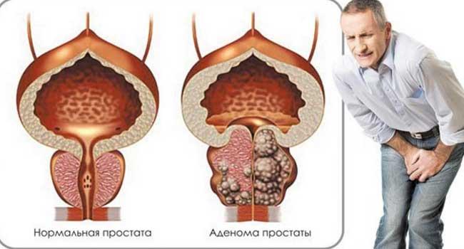 методики лечения аденомы простаты