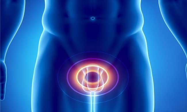Знать официальныесимптомы аденомы простаты и хронического простатита