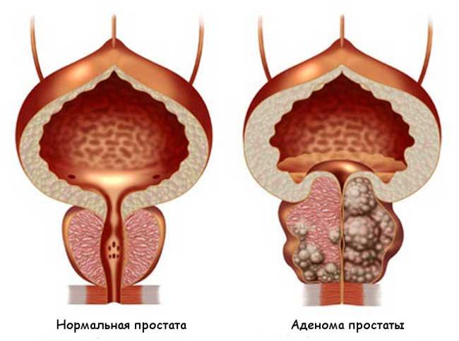 они проявляются по разному и зависят от стадии заболевания