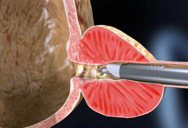 Трансуретральная операция – представляет собой удаление аденомы