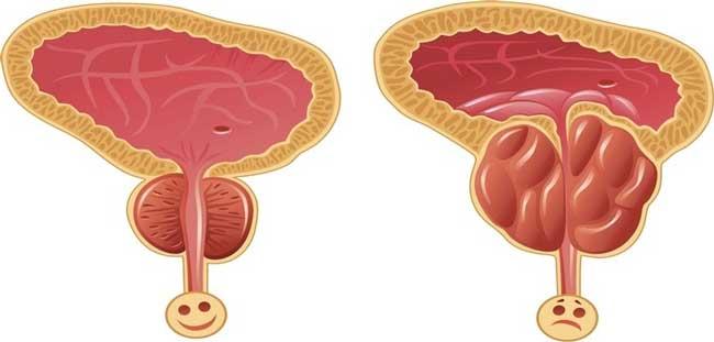 С гиперплазией предстательной железы знакомы многие мужчины не понаслышке