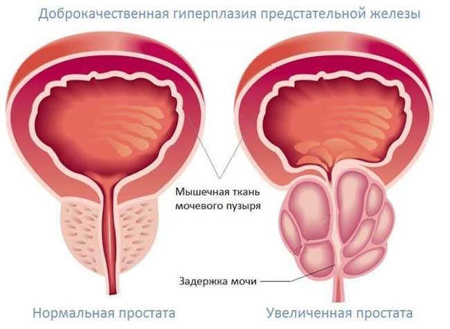 Аденома простаты – это заболевание