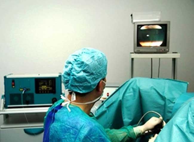 Лазерная вапоризация аденомы простаты. Отзывы