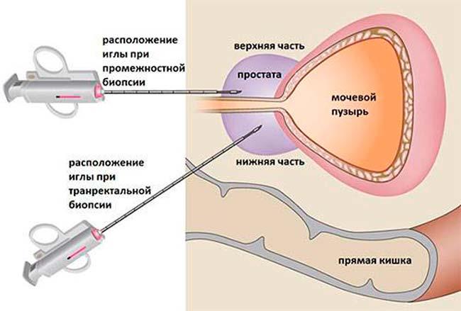 как делать биопсию